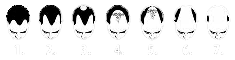 grades of male pattern baldness